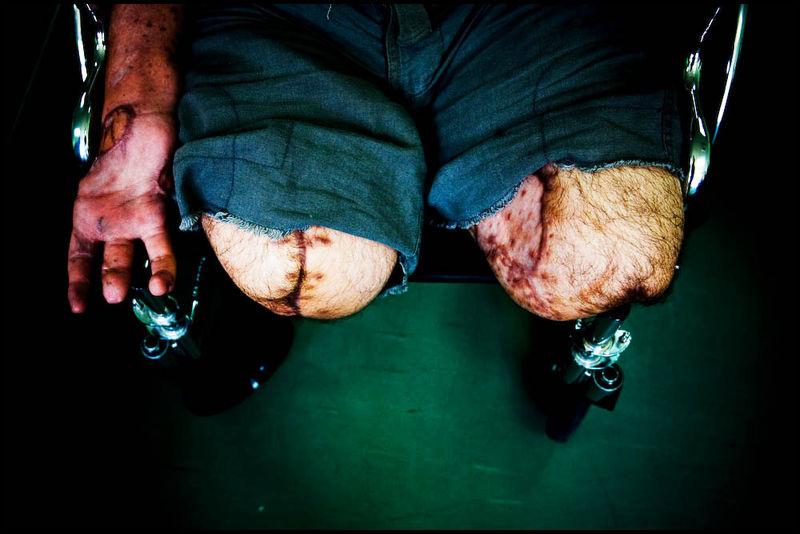 Zoriah_gaza_destruction_damage_civilian_toll_hospital_amputee__08_13_08_G6Y9044