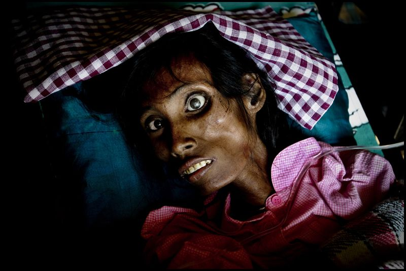 Zoriah_photojournalist_war_photographers_AIDS_asia_woman_death_dying_20041208_2073