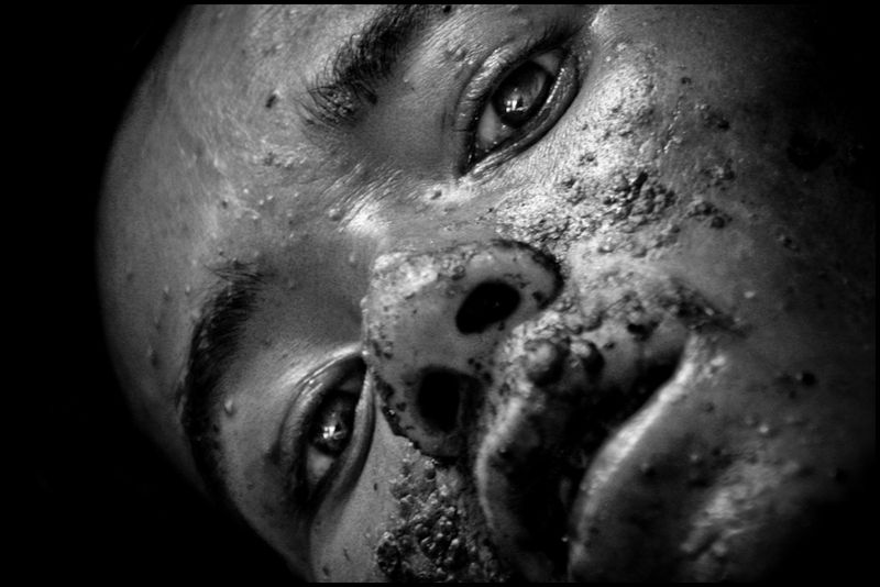 Zoriah_photojournalist_war_photographer_AIDS_in_asia_20041127_8156