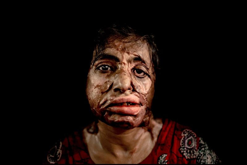 0002_acid-attack-survivor_20130315_8028