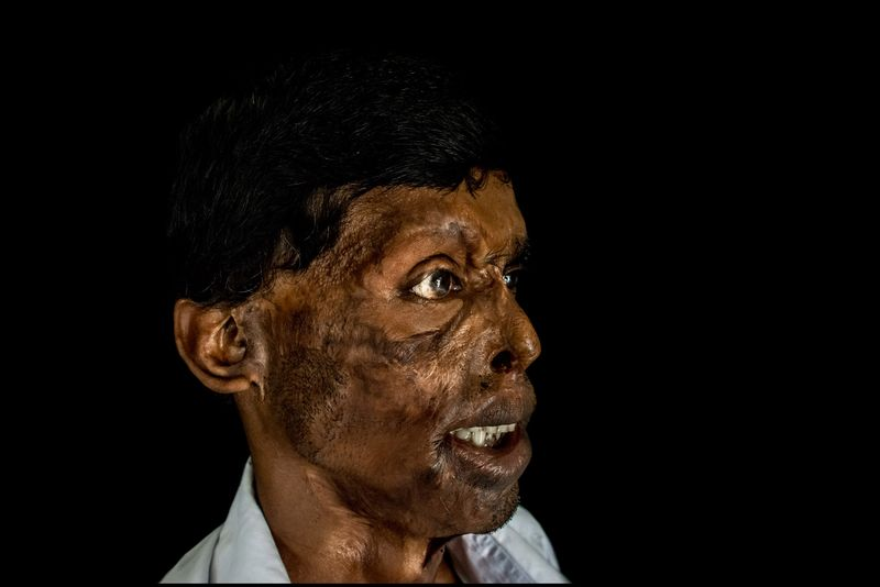 0003_acid-attack-survivor_20130314_7828