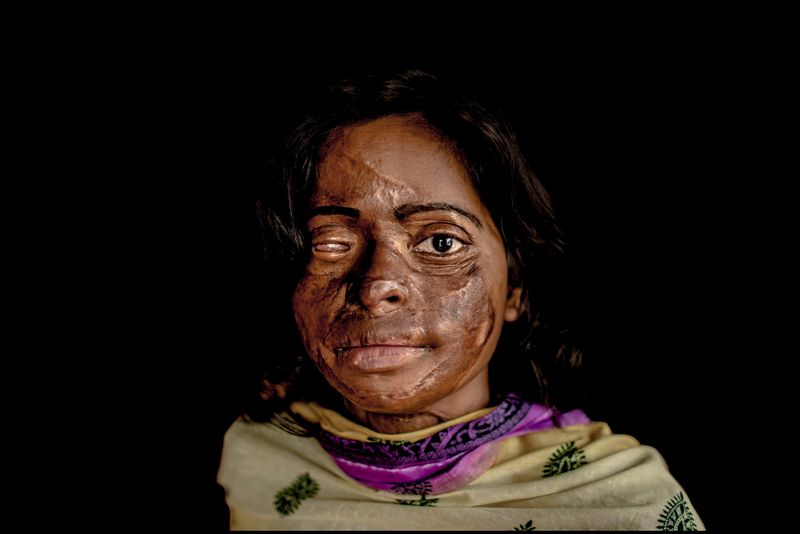 0014_acid-attack-survivor_20130317_8309