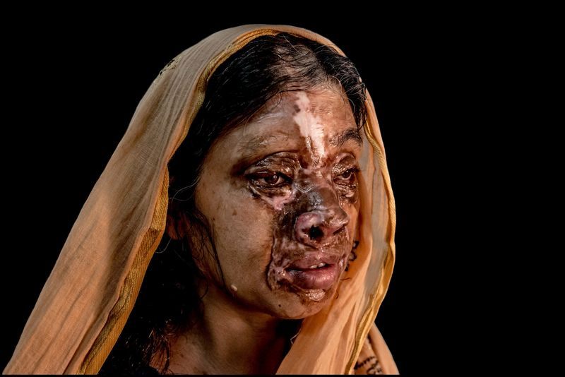 0004_acid-attack-survivor_20130319_8575
