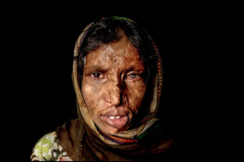 0016_acid-attack-survivor_20130319_8773