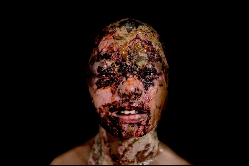 0017_acid-attack-survivor_20130315_8009