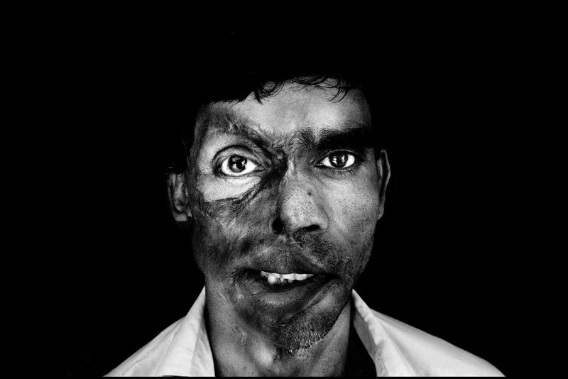 0012_zoriah_photojournalist_war_photographer_acid attack_burn_victim_survivor_20130314_7824