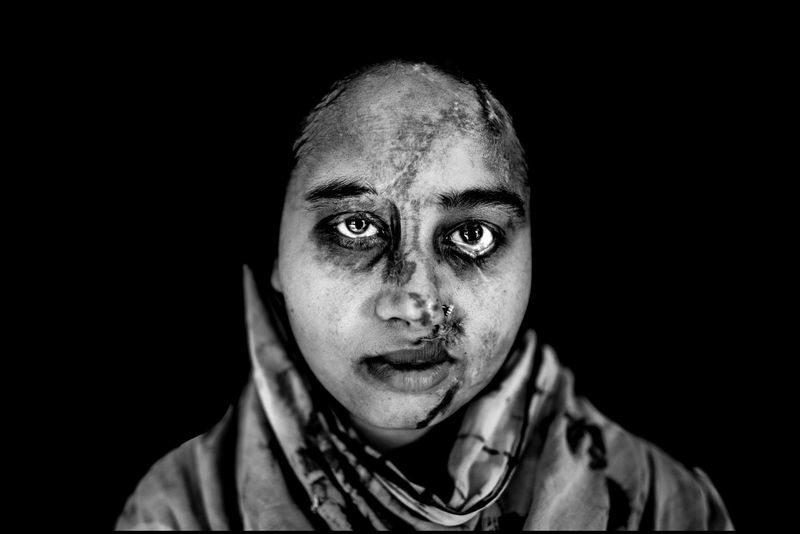 0002_zoriah_photojournalist_war_photographer_acid attack_burn_victim_survivor_20130314_7863