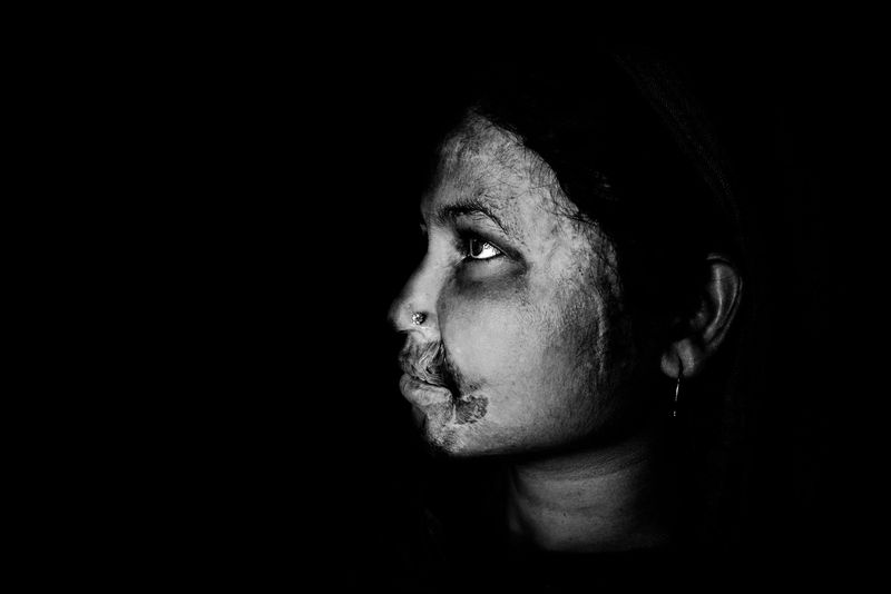 0007_zoriah_photojournalist_war_photographer_acid attack_burn_victim_survivor_20130319_8764