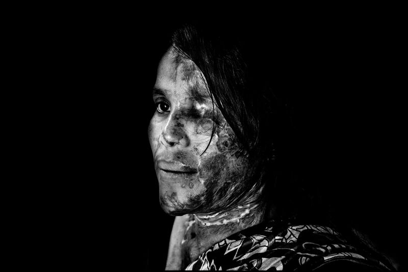 0013_zoriah_photojournalist_war_photographer_acid attack_burn_victim_survivor_20130319_8660