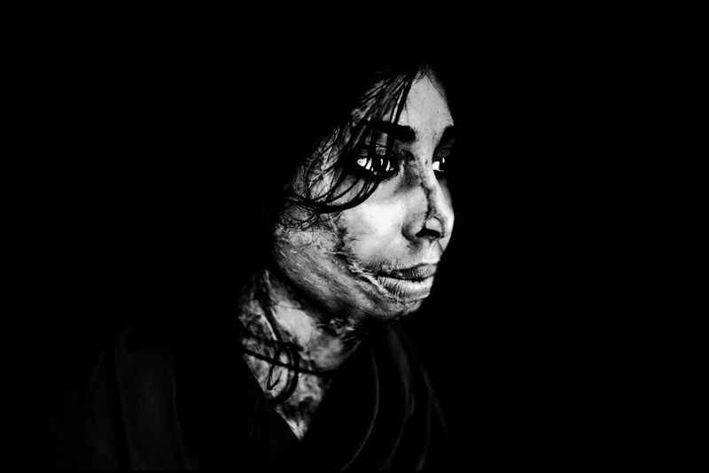 0003_zoriah_photojournalist_war_photographer_acid attack_burn_victim_survivor_20130314_7881