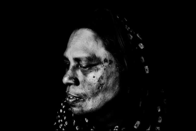 0011_zoriah_photojournalist_war_photographer_acid attack_burn_victim_survivor_20130319_8721