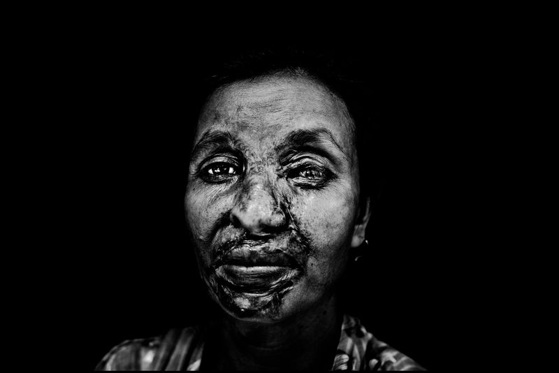 0008_zoriah_photojournalist_war_photographer_acid attack_burn_victim_survivor_20130314_7948